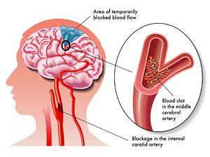 Вегето-сосудистая дистония : лечение болезни